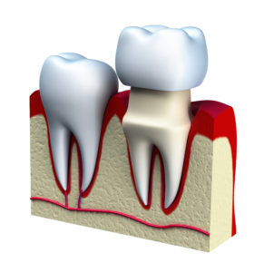 Dental crowns by Park West Dental Care in Idaho Falls ID