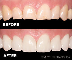 Veneers by Park West Dental Care in Idaho Falls ID