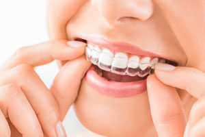Park West Dental provides exceptional orthodontics services in Idaho Falls ID.